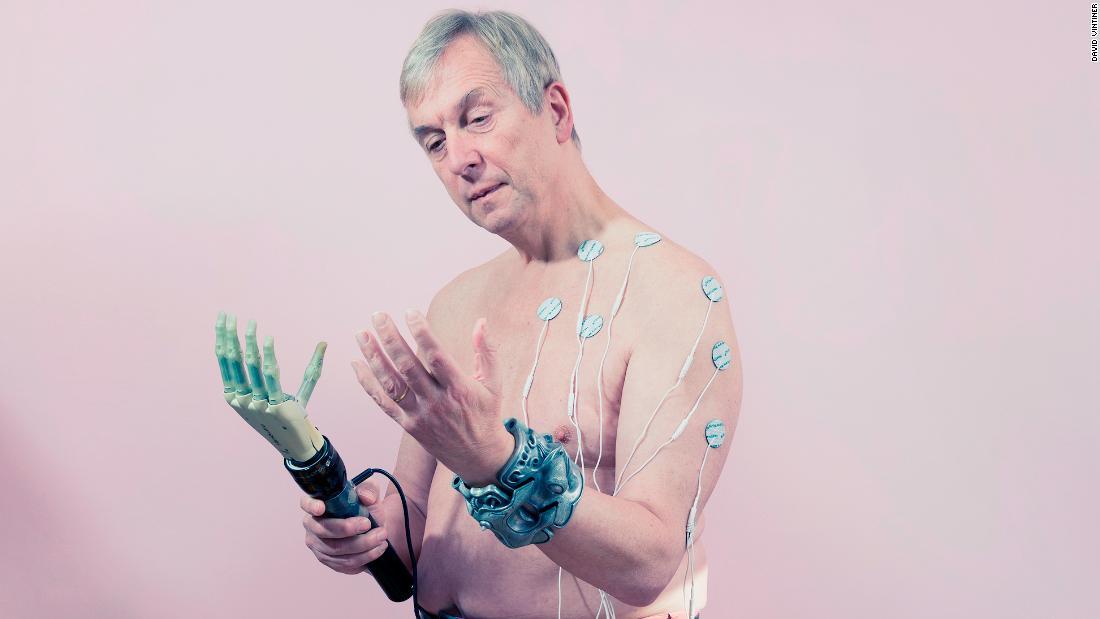 Transumanesimo: cyborg e biohacker che ridefiniscono gli ideali di bellezza
